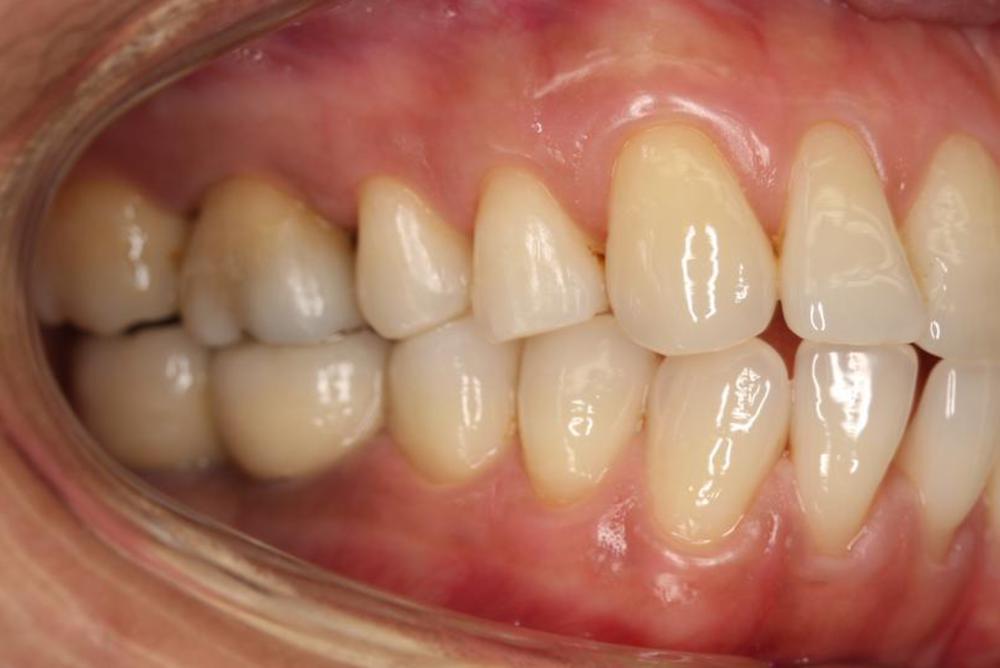 remplacer les deux molaires inférieures par des implants dentaires après