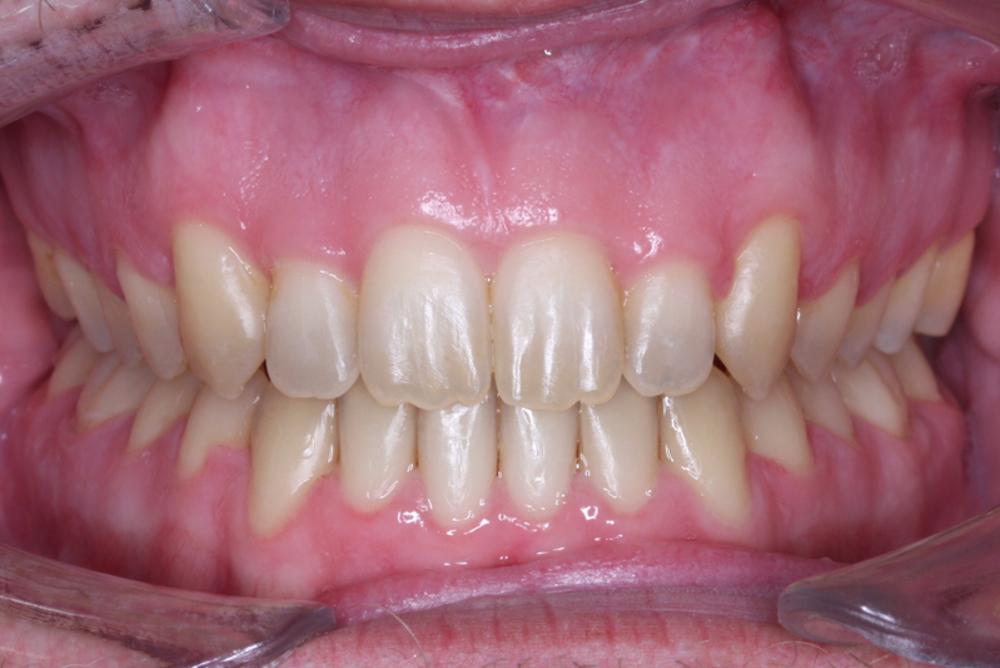 Traitement orthodontique chez l'adulte correction malocclusion avec béance antérieure importante et chevauchement dentaire après