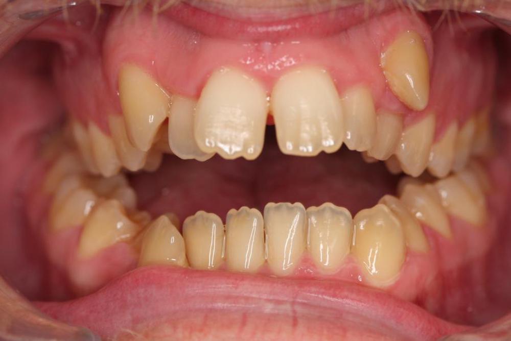 Traitement orthodontique chez l'adulte correction malocclusion avec béance antérieure importante et chevauchement dentaire avant