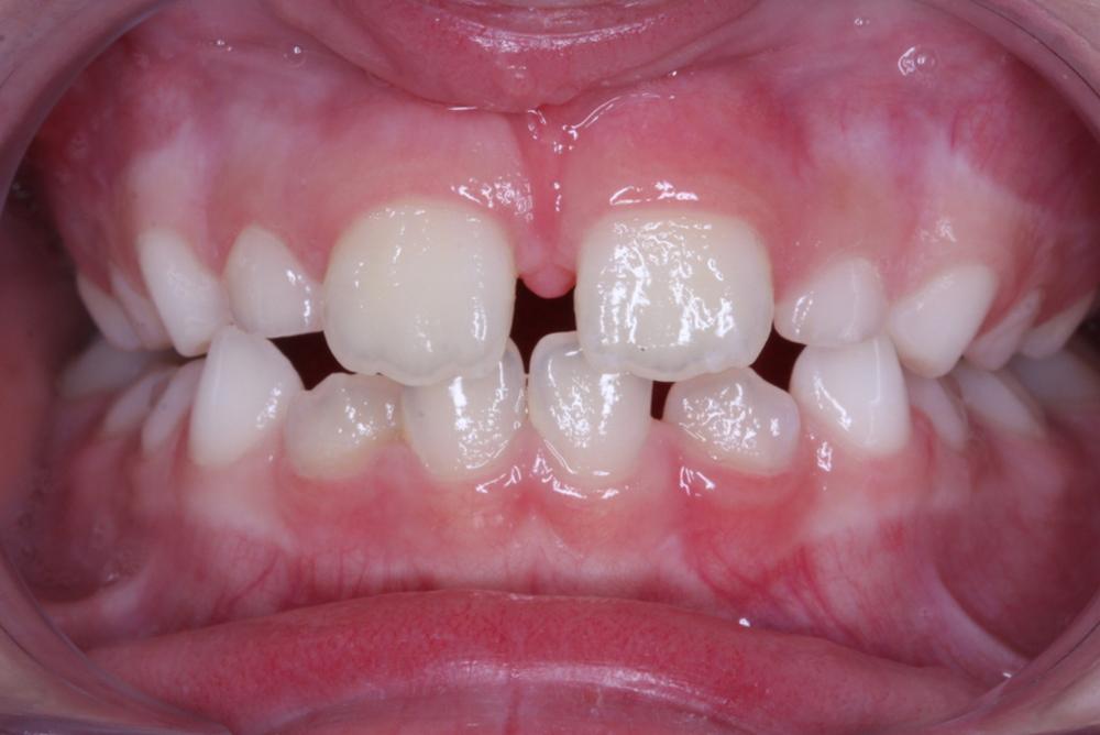 Traitement orthodontique partiel chez l'enfant pour la correction d'un articulé croisé antérieur après
