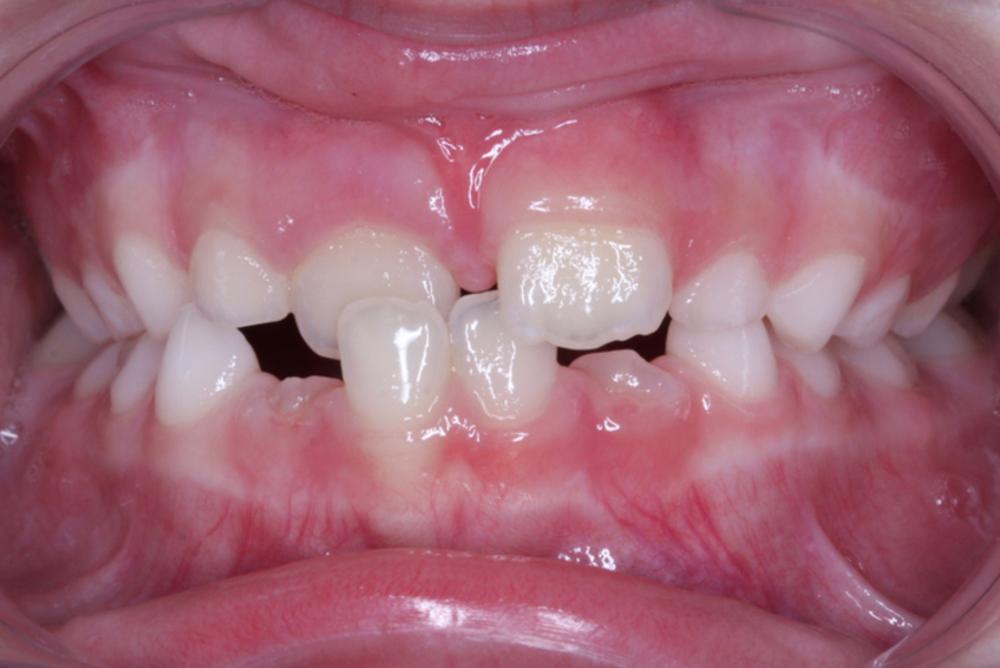 Traitement orthodontique partiel chez l'enfant pour la correction d'un articulé croisé antérieur avant