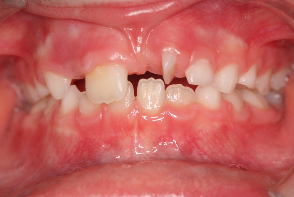 Traitement orthodontique partiel chez l'enfant, correction d'une rotation importante incisive supérieure avant