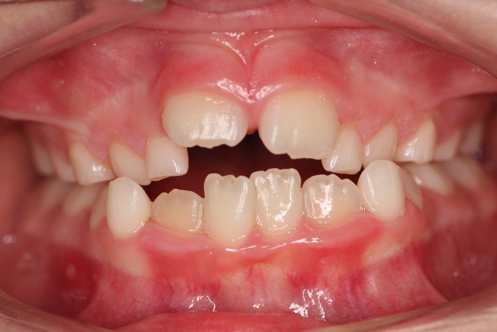 Traitement orthodontique partiel chez l'enfant correction d'un palais étroit manque d'espace à la dentition supérieure avant