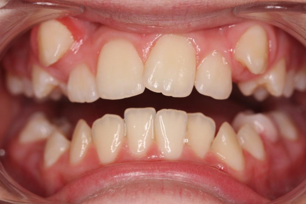 Traitement orthodontique complet chez l'adolescent correction malocclusion chevauchement dentaire important broches orthodontiques avant