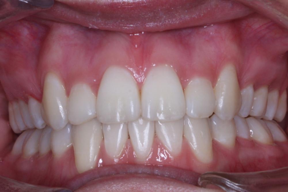 Traitement orthodontique chez une jeune adulte manque d'espace important et chevauchement dentaire après