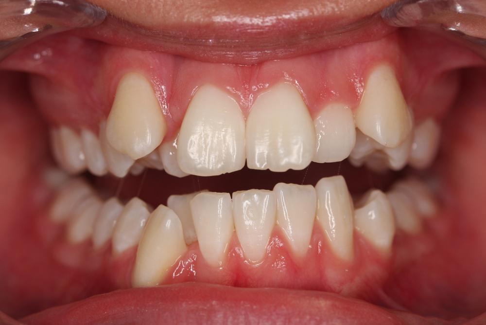 Traitement orthodontique chez une jeune adulte manque d'espace important et chevauchement dentaire avant