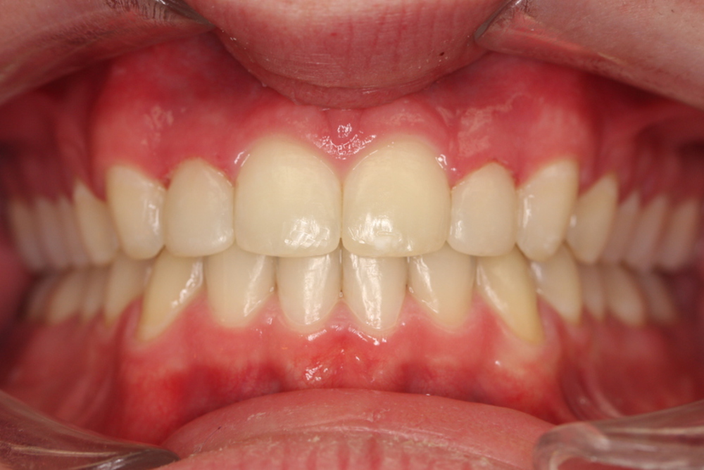 Traitement orthodontique partiel chez l'enfant correction espace à la dentition inférieure après