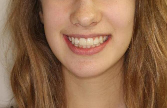 Traitement orthodontique chez l'adolescent correction d'une malocclusion et sourire gingival Chirurgie bi-maxillaire après