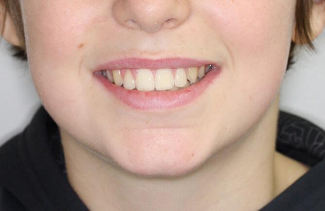 Traitement orthodontique complet chez l'adolescent correction d'une malocclusion après