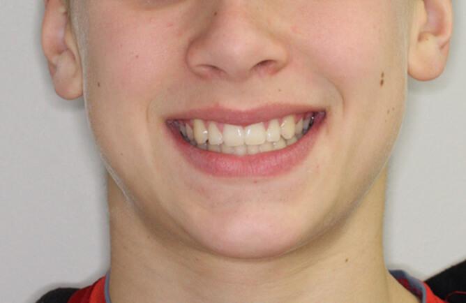 Traitement orthodontique chez un adolescent correction d'un diastème entre les incisives centrales, broches orthodontiques après