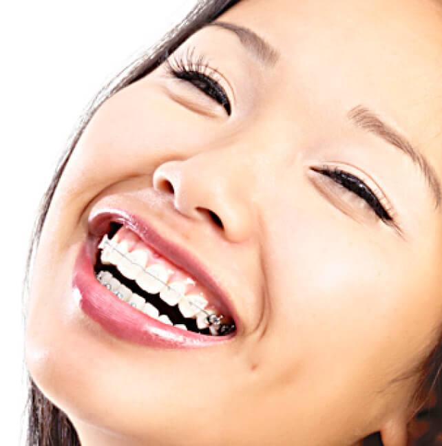 Orthopédie dento-faciale - Orthodontiste ville de Québec-Dr Claude Gariépy