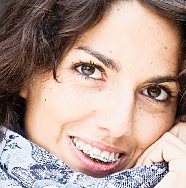 Appareils fixes auto-ligaturants (broches dentaires) et boîtiers semi-transparents- Orthodontiste ville de Québec-Dr Claude Gariépy