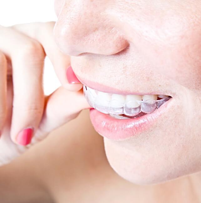 Traitements orthodontie Avant Après- Orthodontiste ville de Québec-Dr Claude Gariépy