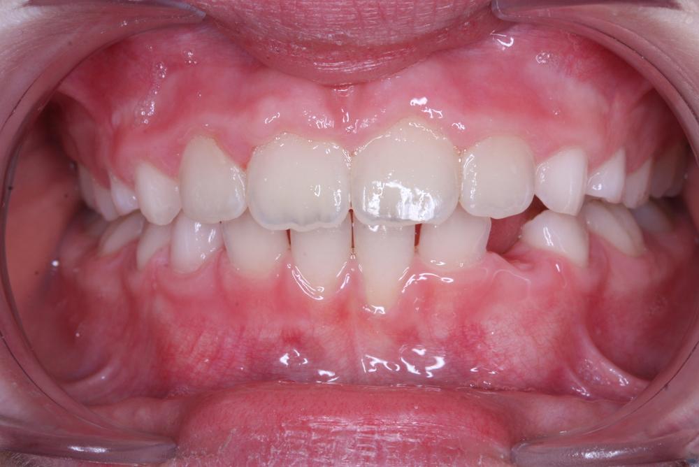 Traitement orthodontique partiel chez l'enfant, correction d'une rotation importante incisive supérieure après