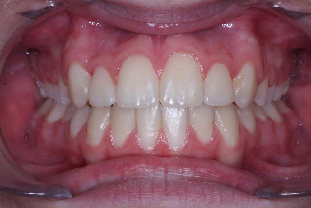 Traitement orthodontique complet chez l'adolescent correction malocclusion chevauchement dentaire important broches orthodontiques avant après