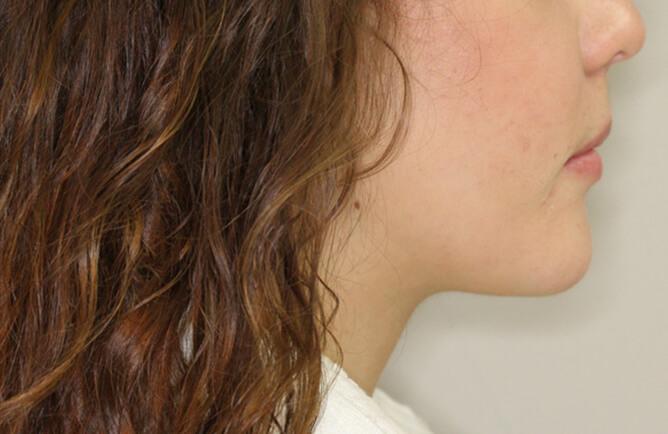 Traitement orthodontique chez une jeune adulte correction d'une malocclusion, broches orthodontiques, chirurgie d'avancement du maxillaire supérieur et recul mandibulaire après