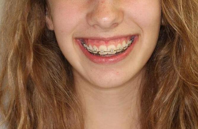 Traitement orthodontique chez l'adolescent correction d'une malocclusion et sourire gingival avant