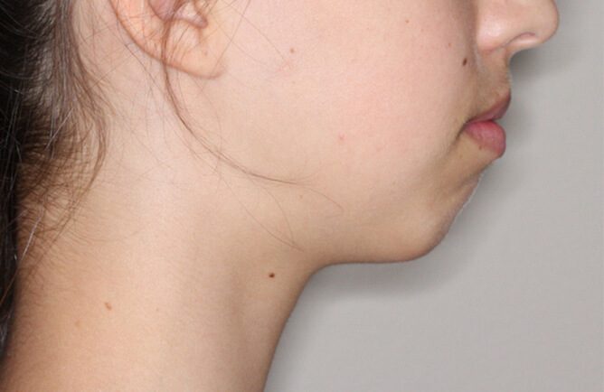 Traitement orthodontique Génioplastie avancement chirurgical du menton avant