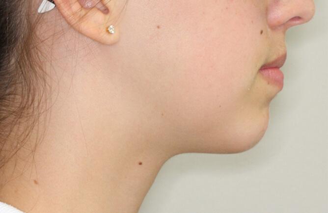 Traitement orthodontique Génioplastie avancement chirurgical du menton après
