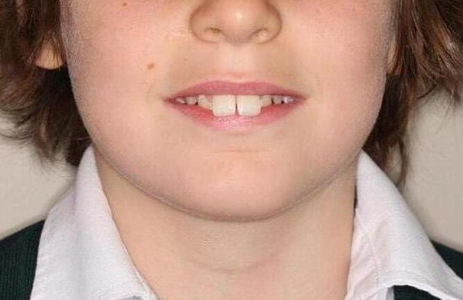 Traitement orthodontique complet chez l'adolescent correction d'une malocclusion avant