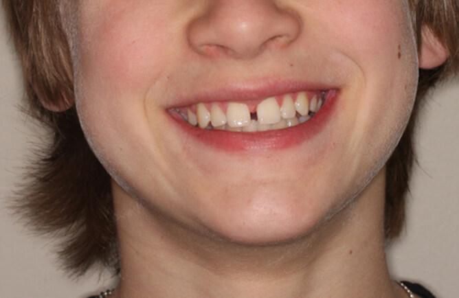 Traitement orthodontique chez un adolescent correction d'un diastème entre les incisives centrales, broches orthodontiques avant